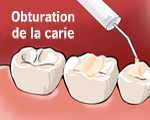 Obturation de la carie